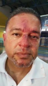 foto arbitro herido